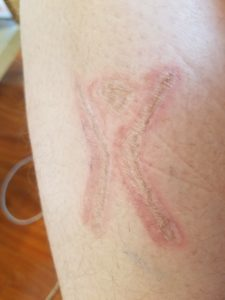 Experimenting with Scarification: Taking Care Of My First Brand
